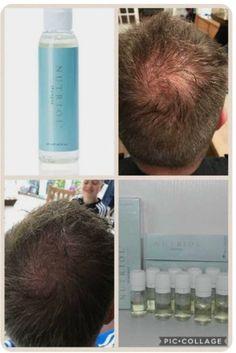 Great results from our nutriol shampoo Nutriol Shampoo, Hair Growth Shampoo, Nu Skin, Ageloc Galvanic Spa, Beauty Guide, Strong Hair, Bad Hair, Anti Aging Skin Care, Hair Loss