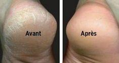astuce-naturelle-pour-traiter-les-pieds-secs-et-fendilles: