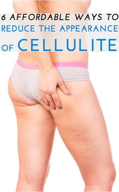 There's no cure for cellulite, but there are ways experts say you can reduce its appearance. Great tips here (and not ones that will break the bank)!