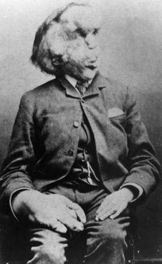 The best known Victorian freak show act is Joseph Merrick, sometimes called John Merrick, but better known as the Elephant Man. Joseph Merrick, John Merrick, American Horror Story, Elephant Man, Sideshow Freaks, Tv Movie, Grand Art, Human Oddities, Circus Performers