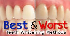 There are several various other advantages of Houston teeth lightening. The brilliant white teeth bleaching system Houston TX is a wonderful choice for individuals that do not have the moment to go to a specialist workplace. For More Information  https://eclipsewhitening.com/best-teeth-whitening-results-houston/