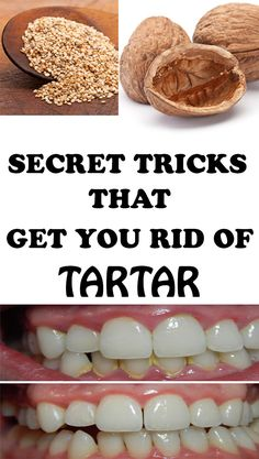 We propose 4 ingenious methods to easily and efficiently remove tartar at home! If you hate going to the dentist here's what you can do!