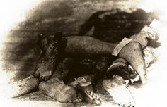 """Amputated limbs lay in a pile outside a Civil War army hospital. """"Field Day."""" Otis Historical Archives, National Museum of Health and Medicine, CP 1043"""