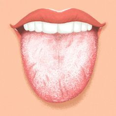 Blister On Tongue, Tongue Sores, Candida Albicans, White Tongue, Tongue Health, Teeth Implants, Fungal Infection, Menopause, Allergies