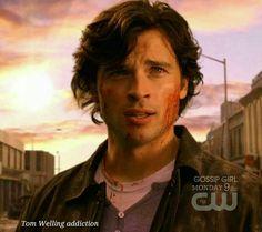 Clark Kent, Tom Welling Smallville, Imaginary Boyfriend, Kristin Kreuk, Beautiful Smile, True Love, Superman, Toms, It Cast
