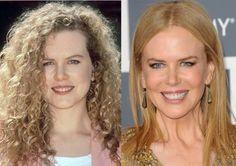 Nicole Kidman Great Smiles, Nicole Kidman, Perfect Teeth