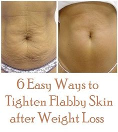 6 Easy Ways to Tighten Flabby Skin after Weight Loss