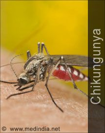 Quiz on Chikungunya