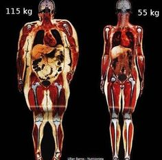 This is going to be my before and after picture