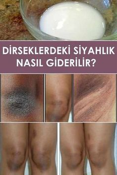 отбеливание кожи How to Get Rid of Dark Elbows and Knees Skin Tips, Skin Care Tips, Home Remedies, Natural Remedies, Beauty Secrets, Beauty Hacks, Beauty Products, Dark Elbows, Guter Rat