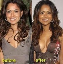 The real secret to getting bigger breasts is to control other hormones which suppress Estrogen