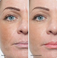 Everything You Ever Wanted To Know About Micro Needling - Top Five Beauty