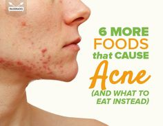 6 More Foods That Cause Acne (And What to Eat Instead)