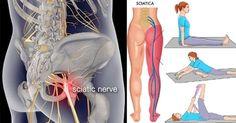Sciatica: Gli Esercizi che alleviano il dolore del Nervo Sciatico in 15 min