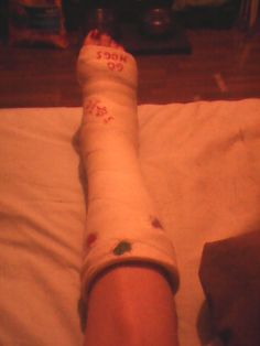 Great tips on SURVIVING LIFE IN A LEG CAST! Broken ankle, foot or leg!
