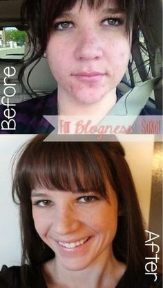 """1. Diet - Cut out gluten, limit grains, cut out dairs, """"clean eating"""" 2. Ditch the Dermatologist - Started using a local spa products, got extractions every 4-5 weeks 3.  Laundry Detergent - Used an eco detergent with mostly vinegar in the wash 4. No Touchy - I know that if I pick my skin, it takes 2 weeks longer for my spot to heal and I'm at risk for scarring. Stop touching your face, people! 5. Makeup - Switch from cheap makeup to face-friendly makeup 6. Water - Drink more than 8 cups a…"""
