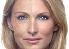 Look Younger in 10 Days - Natural Ways to Remove Wrinkles ~ MediMiss http://www.medimiss.net/2013/03/look-younger-in-10-days-natural-ways-to.html