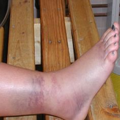 Information On Ankle Sprain Swelling