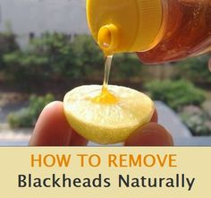 """How to remove blackheads naturally. Just take a 1/2 of a lemon and add a drop of honey. """"Rub"""" gently all over your face. Allow to dry then wash with lukewarm water. That is IT! An added bonus is that the lemon juice may help with fading any """"beauty marks from the sun as well!"""