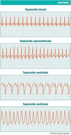 Medicine Notes, Medicine Student, Cardiac Nursing, Nursing Mnemonics, Taquicardia Ventricular, Studying Medicine, Nursing School Notes, Medical Anatomy, Medical Terminology