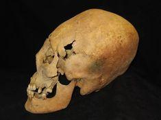 El misterio de los cráneos alargados de Europa Central