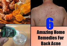 Home Remedies For Back Acne                              …