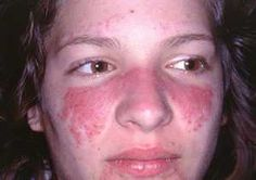 Lupus is one of the most danger disease, we should know about this disease!