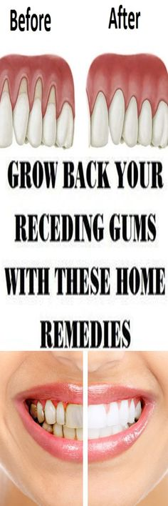 Do you have a problem with receding gums and you don't have solution how to solve it?With only a few home remedies you can solve receding gums in few days!