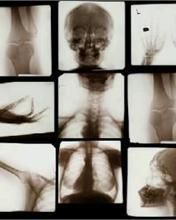 The knee films are upside down & the cxr is reversed....