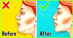 A double chin is not only alarming, but also downright unacceptable. Wondering how to get rid of a double chin? Then you are at the right place, wait no more