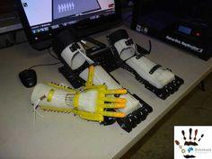 Robohand – OpenSource Prothese aus dem 3D Drucker - #3dprinting #3ddruck