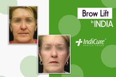 We are pleased to share one of our patients amazing results post her #browlift in India. What do you think about the results? Comment below! #beforeandafter #foreheadlift #faceplasticsurgery #plasticsurgery #cosmeticsurgery #medicaltourism #throwback #bhfyp #follow #like Brow Lift Surgery, Face Plastic Surgery, Forehead Lift, Brows, India, Amazing, Eyebrows, Eye Brows, Indie