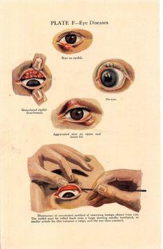 eye disease lithograph, 1920