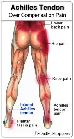 "Achilles tendon injury and ""over compensation"" pain that can affect your lower back, hip, knee and Achilles tendon. Healing power to over come Achilles tendon injury with Cold Compression Freezie Wrap and Inferno Wrap.  http://www.aidmyachilles.com/"