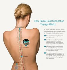 How Spinal Cord Stimulation Therapy Works. Causes Of Back Pain, Neck And Back Pain, Spinal Cord Stimulator, Occipital Neuralgia, Complex Regional Pain Syndrome, Degenerative Disc Disease, Back Pain Exercises, Balance Exercises, Oil For Hair Loss