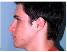 Chin Augmentation before and after patient photos from Chicago Plastic Surgery Specialist Dr. Facial Implant, Cheek Implants, Chin Implant, Plastic Surgery Photos, Fett, Photo Galleries, Chicago, Gallery, Face