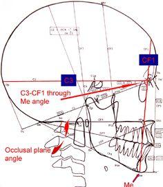 Image result for occlusal plane angle Orthodontics Marketing, Dental Aesthetics, Dental Anatomy, Dental Technician, Oral Surgery, Medical Illustration, Dental Hygienist, Dentistry, Teeth