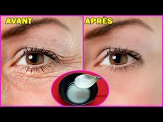 This is How to Use Coconut oil and Baking Soda to Look 10 Years Younger - pia Facial Tips, Facial Care, Beauty Tips For Face, Beauty Hacks, Blue Tansy Essential Oil, Mom Haircuts, Blue Mascara, Heath Care, Smoky Eye Makeup