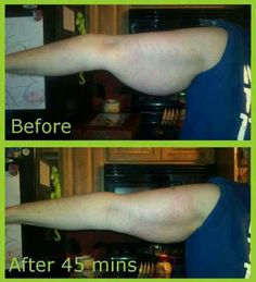 Before and after pics with that crazy wrap thing!