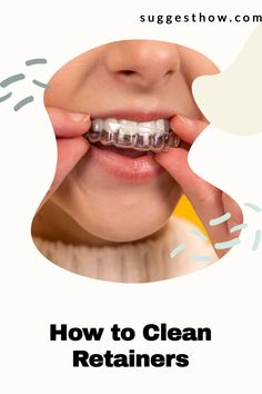 Retainers sits inside your mouth so you'll want to know how to clean retainers to remove plaque and odor-causing bacteria. Find out the best ways for how to clean your retainers and Invisalign aligners at home. You can get rid of the white buildup (plaque), and remove the bad smell of retainers with these 2 easy soaks. With more helpful tips & DIY retainer cleaner recipes. #invisalign #invisaligntray #howto #braces #deepclean How To Clean Retainers, Clear Retainers, Beauty Care, Beauty Tips, Beauty Hacks, Deep Cleaning Tips, Cleaning Hacks, Retainer Cleaner, Nail Care Tips