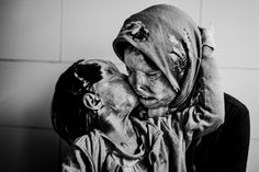 """IPA AWARD deeper perspective. """" Victims of Forced Love"""" by Ebrahim Noroozi, Iran.  Somayeh Mehri (29) and Rana Afghanipour (3) - a mother and daughter living in Bam, southern Iran. They were attacked with acid by Somayeh's husband Amir."""