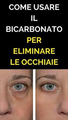 Hai Le Occhiaie? Metti Del Bicarbonato Sotto Gli Occhi Ed Eliminale Per Sempre!