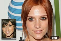 and Worst Celebrity Plastic Surgery The Best: Ashlee Simpson-Wentz, Best Celebrity Plastic SurgeryBest Friend Best Friend or Best Friends may refer to: Ashlee Simpson, Young Living, Bad Plastic Surgeries, Celebrity Plastic Surgery, Surgery Recovery, Dental Surgery, Celebs, Celebrities, Dental Care