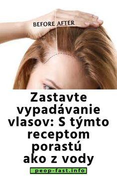 Zastavte vypadávanie vlasov: S týmto receptom porastú ako z vody Natural Medicine, Workout Programs, Healthy Life, Face, Nature, Beauty, Health, Healthy Living, Naturaleza