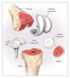 1000 Images About Artificial Body Parts On Pinterest