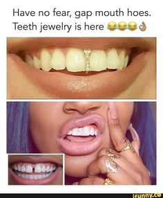 Have no fear, gap mouth hoes. Teeth jewelry is here %%%& - iFunny :) Gap Teeth, Teeth Braces, Gold Braces, Tooth Gem, Grills Teeth, Brace Face, Natural Teeth Whitening, Whitening Kit, Teeth Bleaching