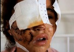 38 Muslim Men Gang Rape 15 Year Old Girl for Several Hours | When muslim men rape they are extremely brutal as you can see in this photo. It is a miracle she survived. Traumatized for life by subhuman savages. this is that peaceful religion josh earnest spoke of today, 1/12/'15, when speaking about paris murderers.