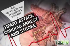 You Must Know the Differences between a Heart Attack, Cardiac Arrest and Stroke | Top 10 Home Remedies