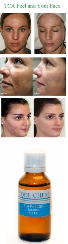 Chemical peels are all the rage in UK and Ireland right now. In addition to glycolic peel, many girls choose to undergo another popular procedure, TCA Peel. So, what is it? Well, TCA is a non-toxic chemical (trichloracetic acid), which has been used to perform skin peels for over 20 years. It is a relative of vinegar (acetic acid.) When TCA is applied to the skin, it causes the top layers of cells to dry up and peel off over a period of several days to one week.