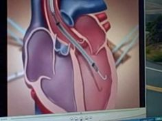 Impella 5.0 animation showing how it aids heart failure patients - YouTube
